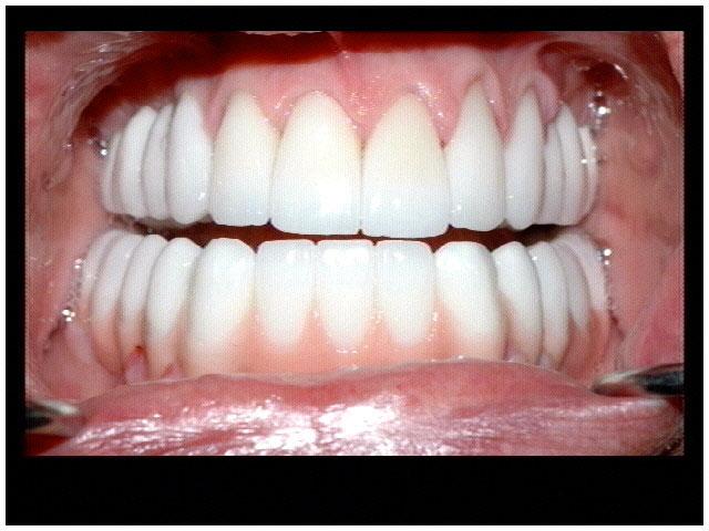 atlanta cosmetic dentistry dr mastro alluring cosmetic